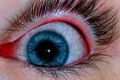 Bruciore agli occhi