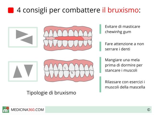 Bruxismo: cause, rimedi, sintomi e conseguenze in bambini ed adulti