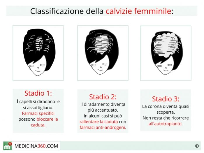 causa perdita di capelli nelle donne