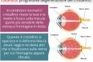 Cataratta primaria o secondaria: sintomi, intervento e complicazioni