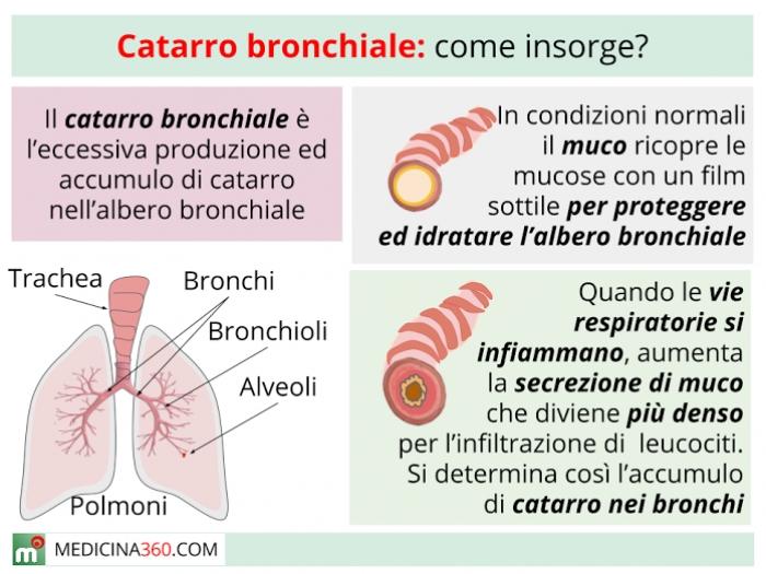 Catarro bronchiale sintomi cause cure e rimedi per for Orecchie a sventola rimedi naturali per adulti