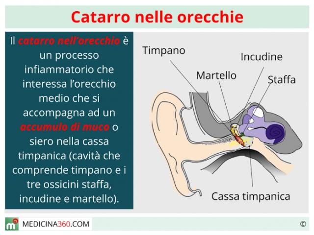 Catarro nelle orecchie: sintomi, cause, terapia e rimedi naturali