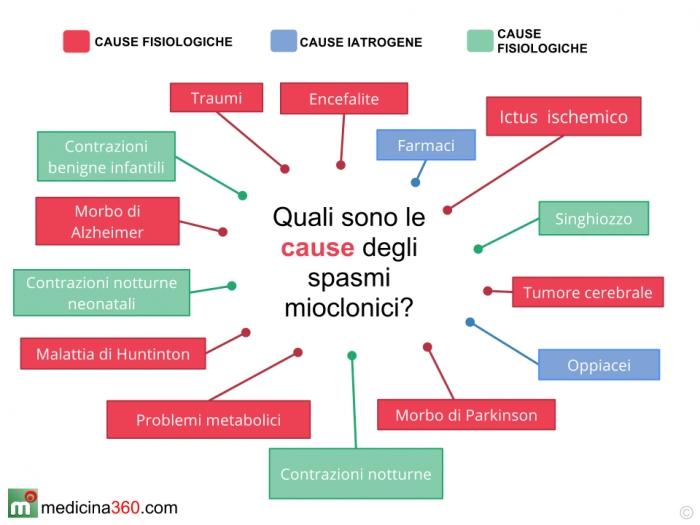 Le cause principali di mioclonie