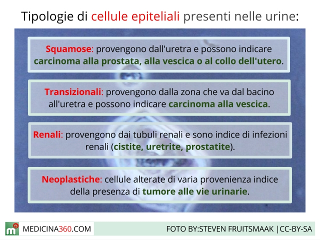 Cellule epiteliali nelle urine