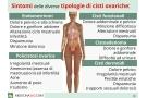 Cisti ovariche: sintomi delle diverse tipologie