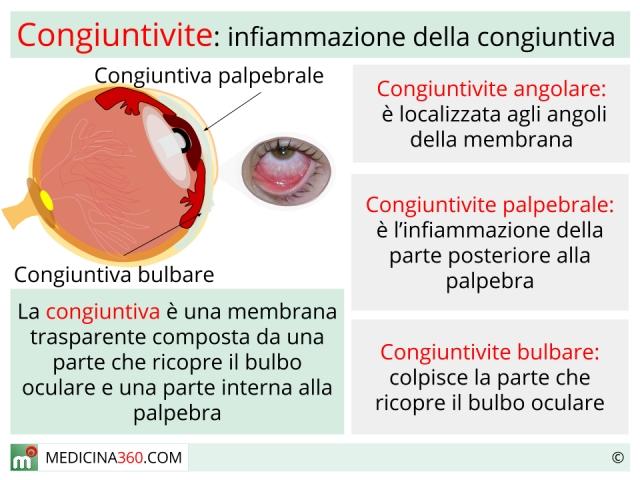 Congiuntivite: virale o batterica, allergica o irritativa. Sintomi e cure
