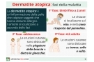 Cura di lampada di quarzo di eczema