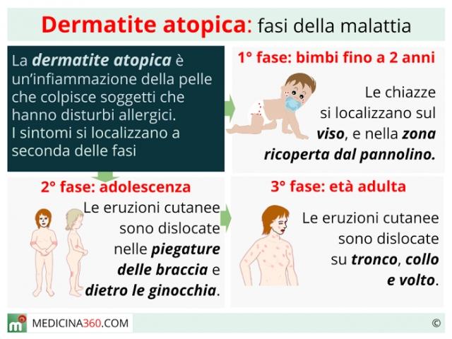 Dermatite atopica: cause, cura, alimentazione e rimedi naturali
