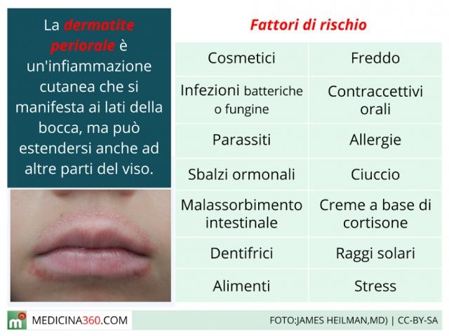 periorbitale dermatitis altmeyer