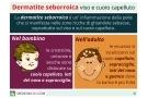 Dermatite seborroica su viso e cuoio capelluto: sintomi, cause e rimedi