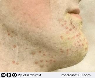 Come aggiornare la pelle di faccia dopo posti