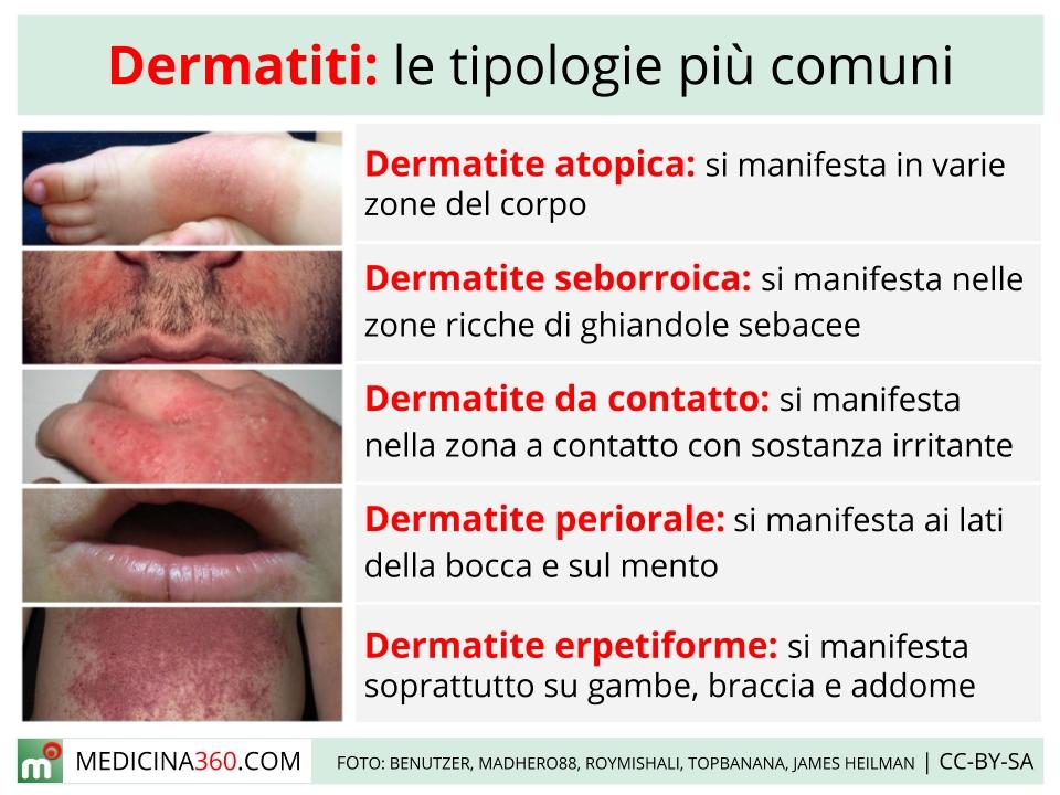 dermatite zona intima paraziti u tijelu lijecenje