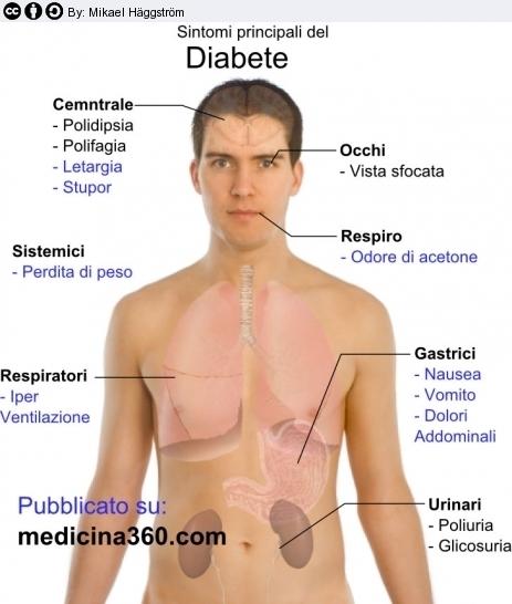 Diabete sintomi