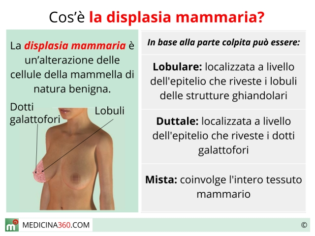 Displasia mammaria