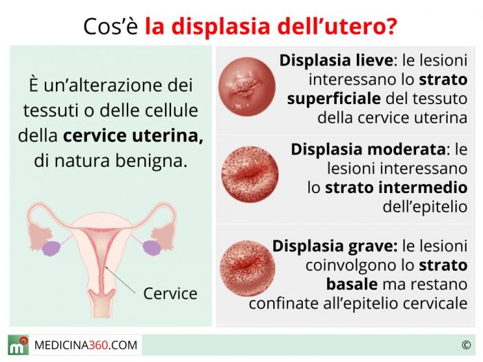 papilloma virus displasia grave comprimate vermox fără rețetă