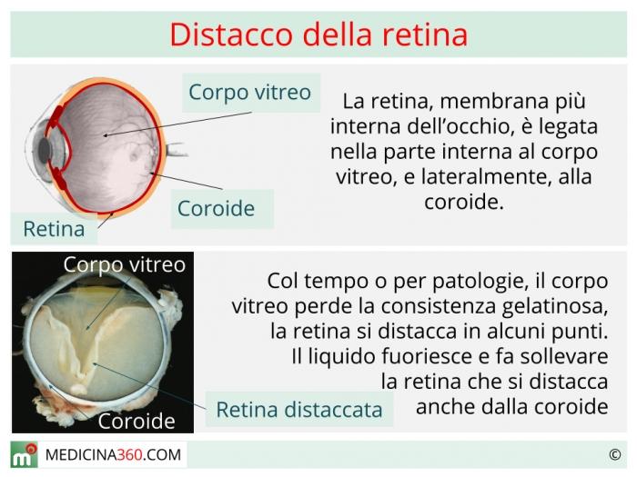miopia retina sottile tratamentul vederii cu paralizie cerebrală
