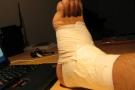 Distorsione della caviglia: gradi, sintomi, terapia e rimedi naturali