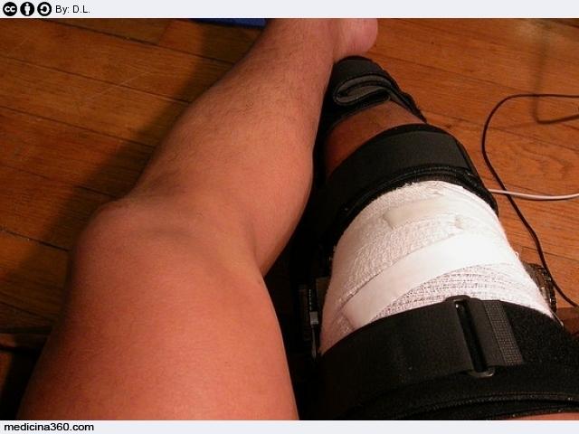 Distorsione del ginocchio: sintomi, terapia, riabilitazione e rimedi naturali