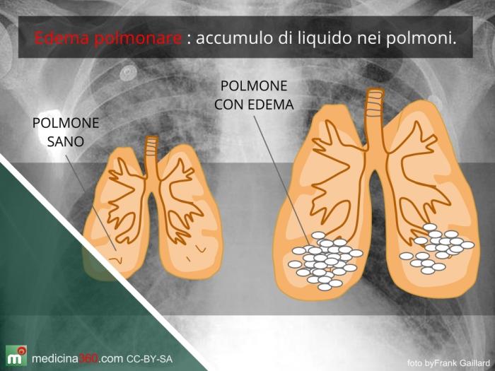 edema polmonare acuto trattamento linee guida