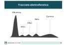 Elettroforesi proteica: alfa, beta e gamma