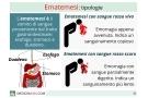 Ematemesi: possibili cause e terapie per il sangue dallo stomaco