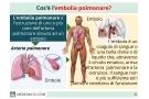 Embolia polmonare: cause, sintomi, diagnosi, terapia e conseguenze