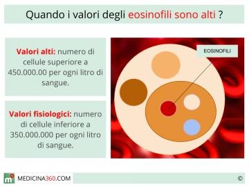 Eosinofili alti