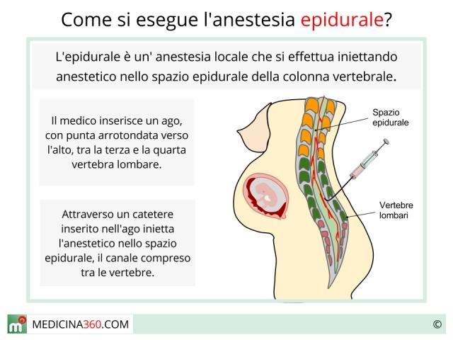 Anestesia Peridurale: la procedura - Essere Mamme a Vicenza