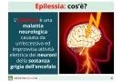 Epilessia: tipi, sintomi, cause e cure per le crisi epilettiche