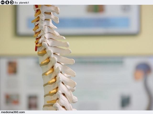 Trattamento video di una spina dorsale a ernie