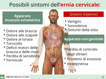 Prolungamento di gambe da varicosity
