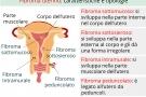Fibroma uterino: sintomi, cause, ed intervento