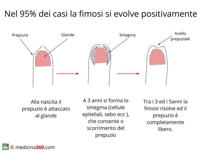Evoluzione fisiologica della fimosi