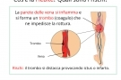 Flebite superficiale o profonda: sintomi, cause, cura e casi frequenti (gambe o braccia)