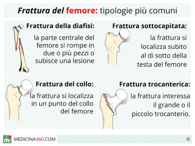 Frattura del femore: tipi, sintomi, cause, intervento, riabilitazione e conseguenze