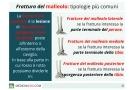 Frattura del malleolo: tipi, sintomi, cause, trattamento e riabilitazione