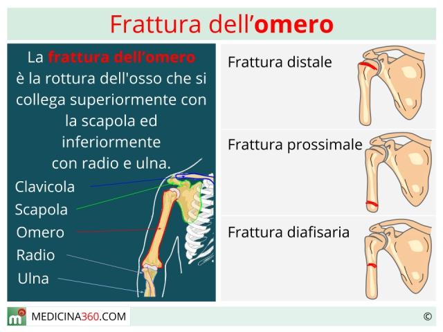 Frattura omero: tipi, intervento e riabilitazione