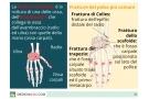 Frattura polso: tipi, sintomi, terapia, intervento e riabilitazione