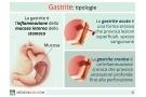 Gastrite: acuta e cronica. Sintomi, cause, rimedi e rischi