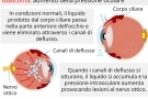 Glaucoma all'occhio: sintomi, cause, cure, intervento e tipi