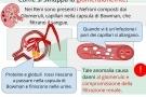 Glomerulonefrite acuta o cronica. Sintomi, cause e cura