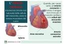 Infarto del miocardio: sintomi, cause, prevenzione, terapia e conseguenze
