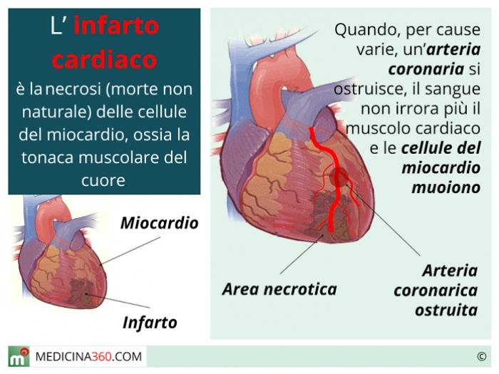 cuore infarto sintomi