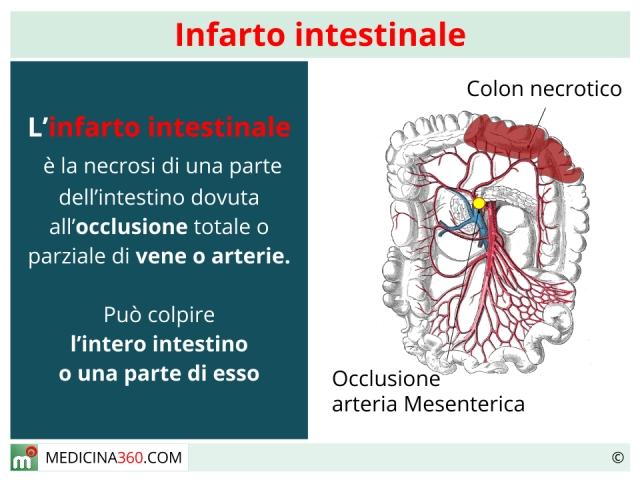Infarto intestinale: sintomi, cause, terapia e mortalità dell'ischemia