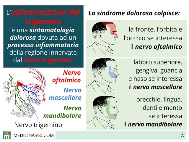 Infiammazione del trigemino: sintomi, cause e rimedi