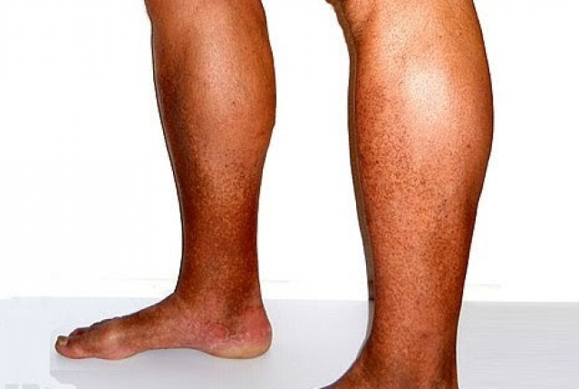Unguento varicosity per trattamento