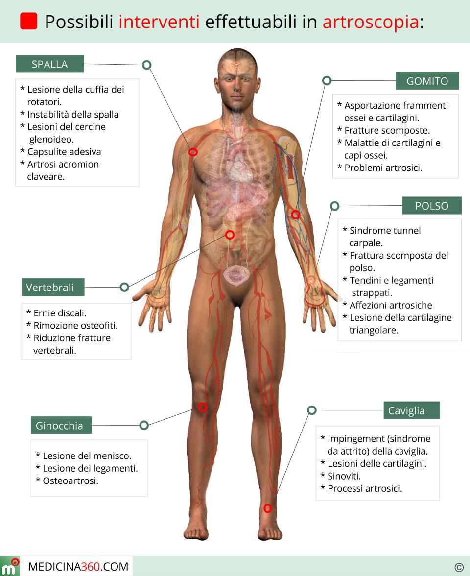 Artroscopia alle articolazioni 63a2c6c72641