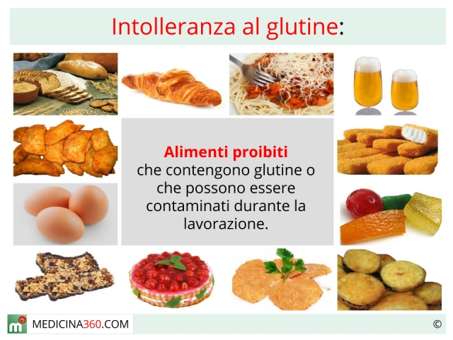 glutine cibi