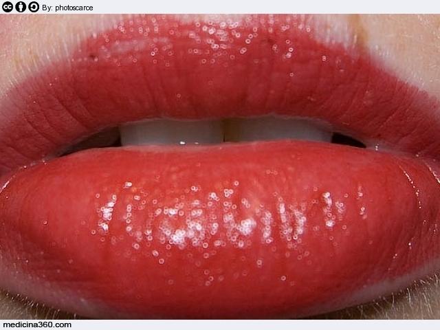 Labbra infiammate: cause e rimedi farmacologici e naturali