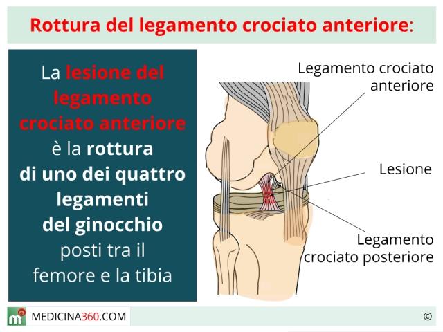 Legamento crociato anteriore: lesione o rottura. Sintomi, intervento, riabilitazione ed esercizi
